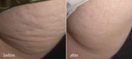 traitement cellulite velasmooth lyon
