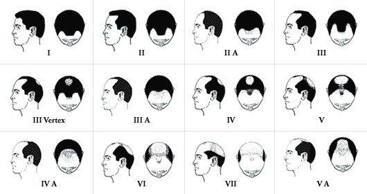 greffe de cheveux lyon, classification de Norwood et Hamilton